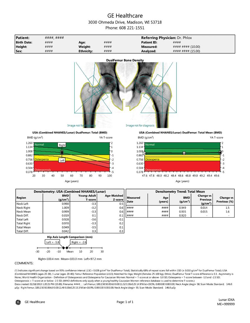 Ge Healthcare Bone Density Report Sample