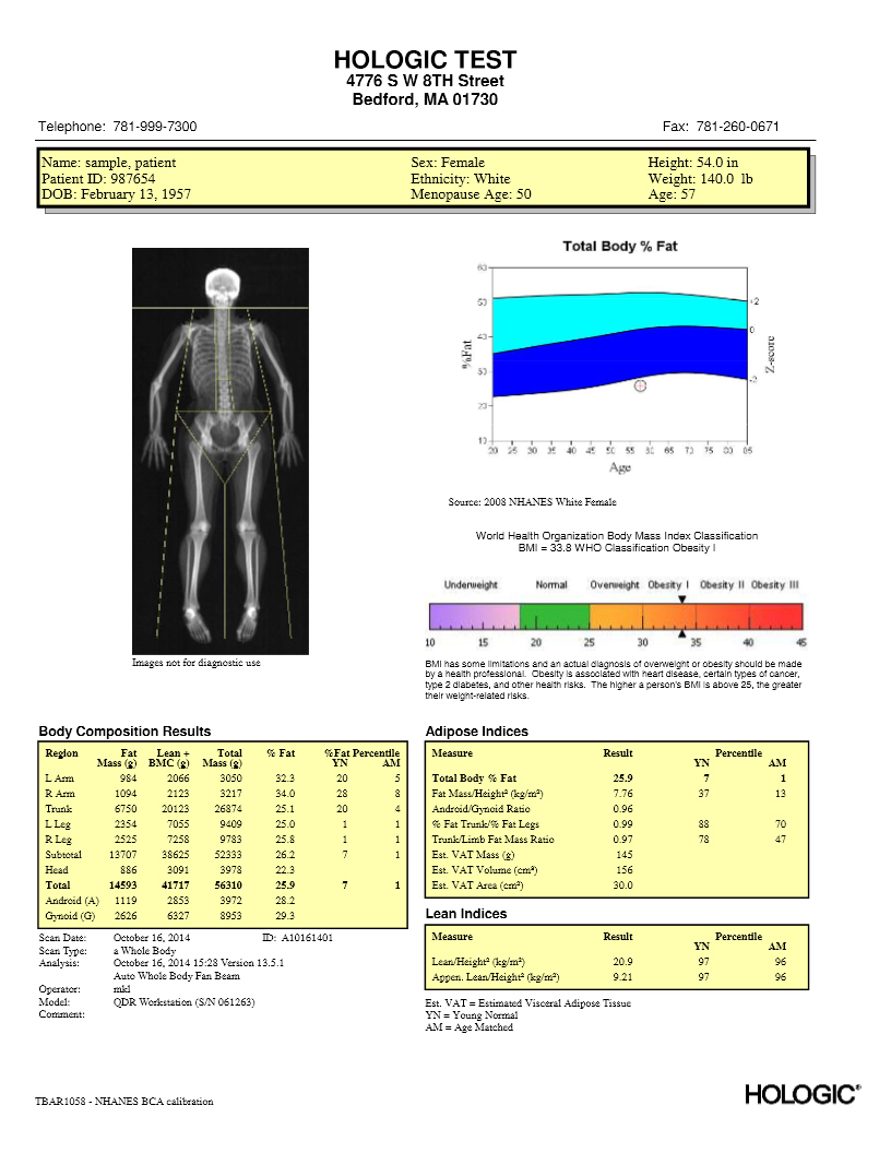 hologic body composition report sample